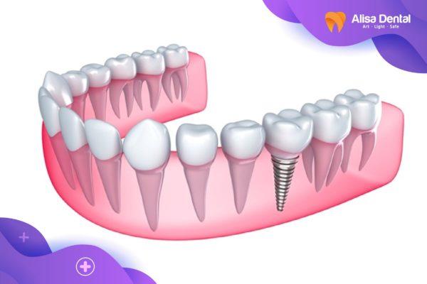 Có nên trồng răng sứ 4