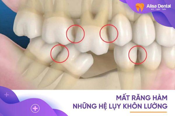 Mất răng hàm 1