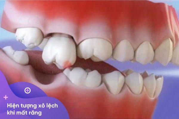 Mất răng số 7 2