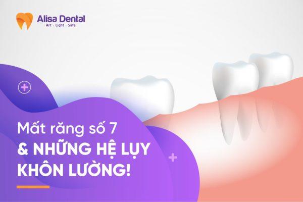 Mất răng số 7 1