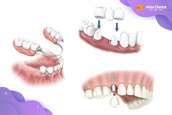Mất nhiều răng 3