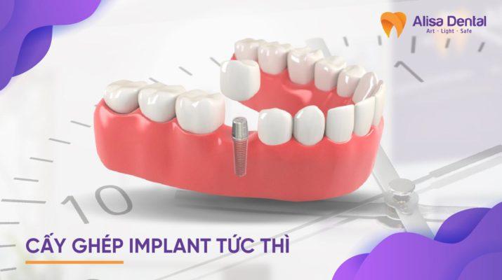 Cấy ghép implant tức thì 1