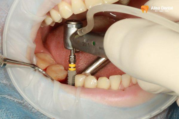 Trồng răng Implant bị sưng 1