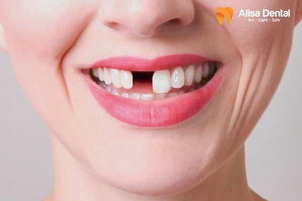 Gãy răng 4