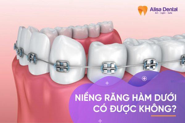 Niềng răng hàm dưới 1