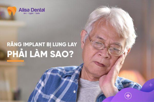 Răng Implant bị lung lay 3