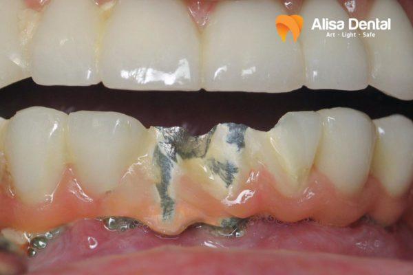 Răng Implant bị lung lay 2
