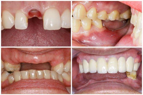 Trồng răng sứ 1