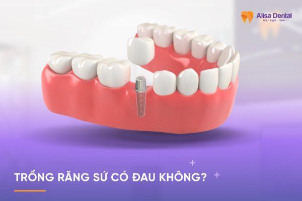 Trồng răng sứ có đau không 4