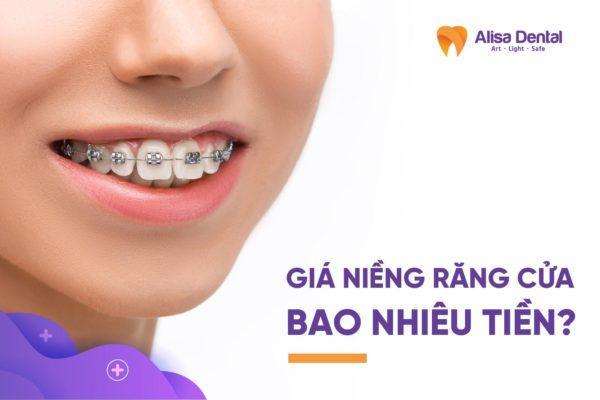 Giá niềng răng cửa 2