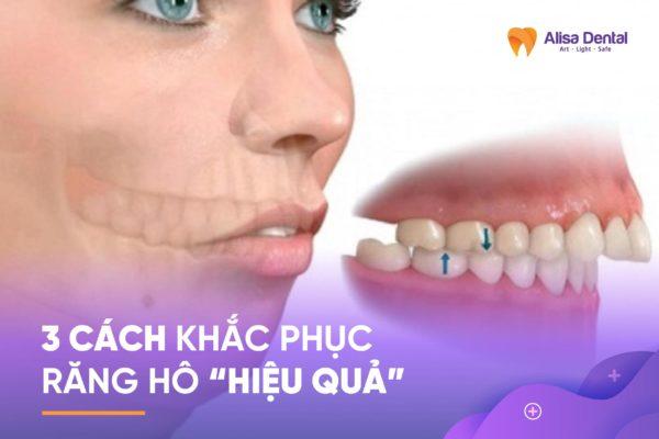 khắc phục răng hô 2