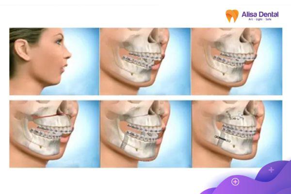 khắc phục răng hô 1