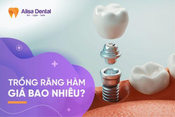 Trồng răng hàm giá bao nhiêu 1