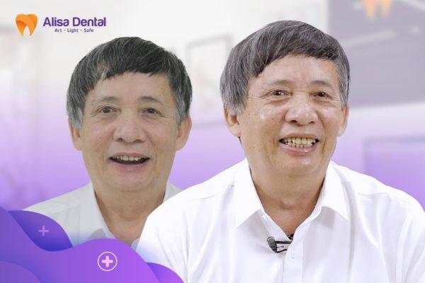 Cấy ghép Implant all on 4 10