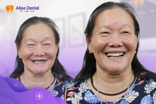 Trồng răng Implant All on 6 2