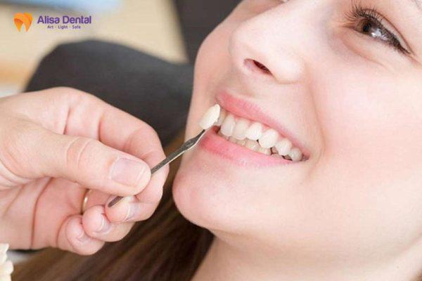 Trồng răng khểnh 4
