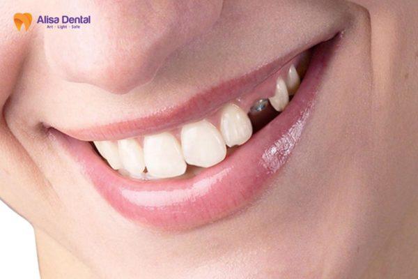 Trồng răng nanh 3