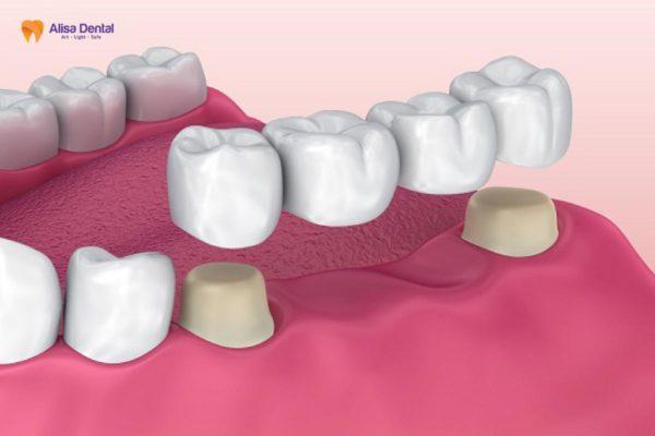 Trồng răng số 7 6