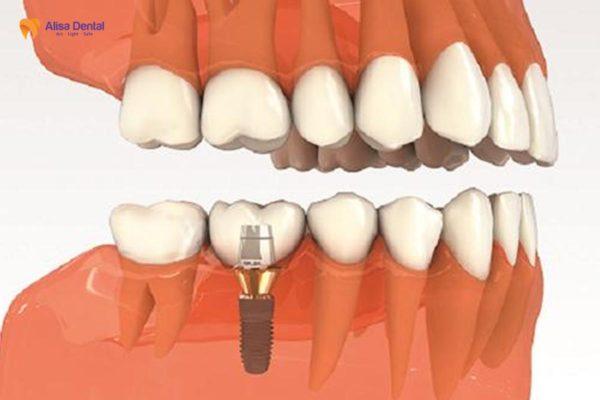 Trồng răng số 7 7