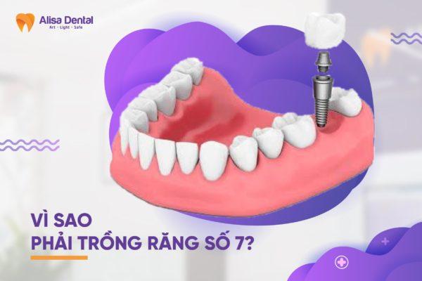 Trồng răng số 7 3