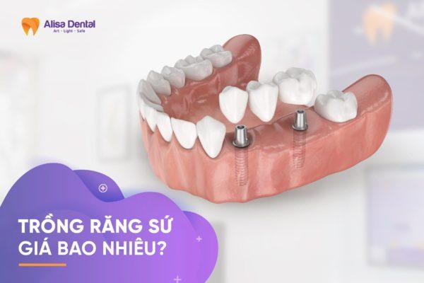 Trồng răng sứ giá bao nhiêu 4