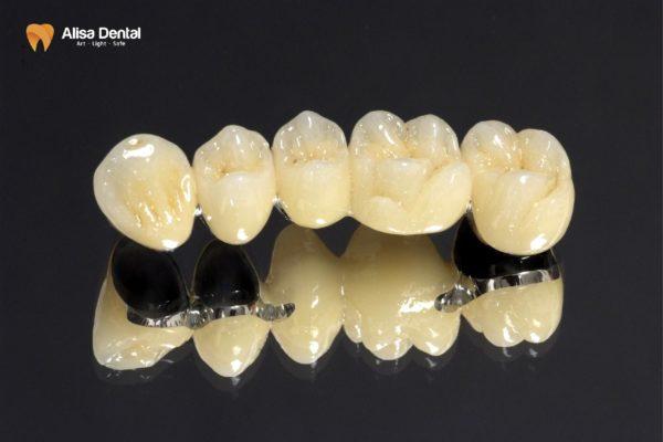 cầu răng sứ 2
