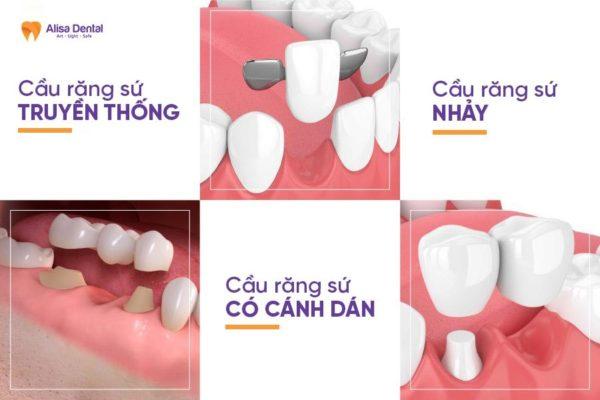 cầu răng sứ 4