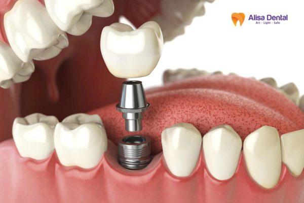 Trồng răng sứ kim loại 3