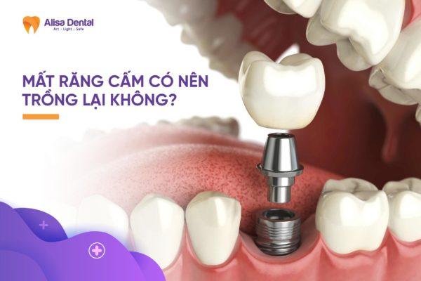 Mất răng cấm 2