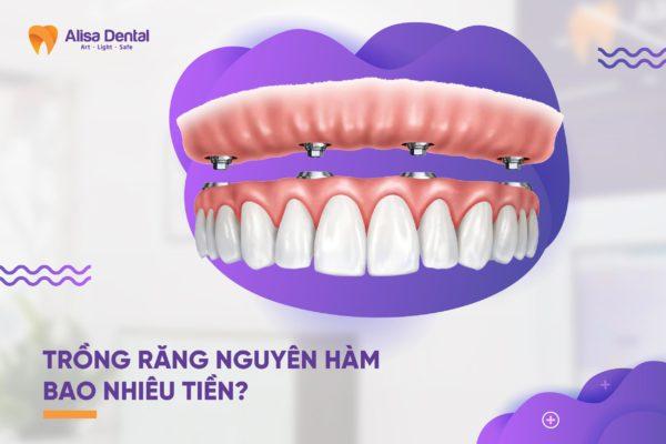 Trồng răng nguyên hàm bao nhiêu tiền 1