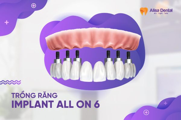 Trồng răng Implant All on 6 1