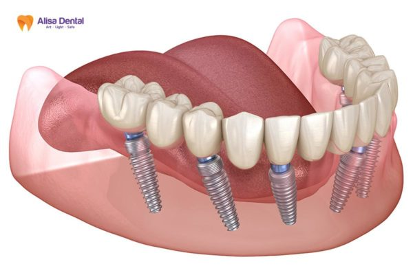 Trồng răng Implant All on 6 5