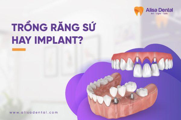 nên trồng răng sứ hay Implant 5