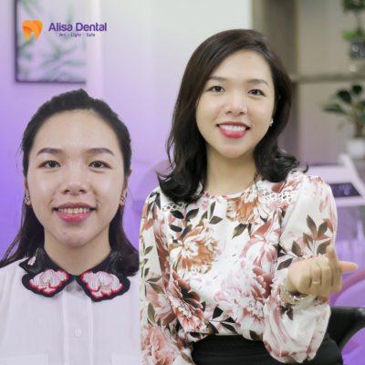NguyenThuyLinh_Thammyrangsu_Alisa 6