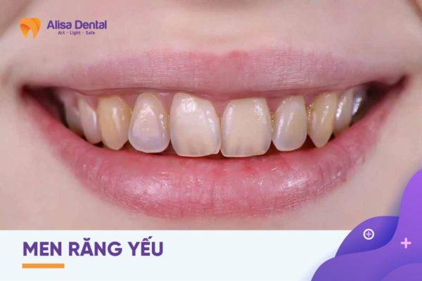 Bột tẩy trắng răng 3