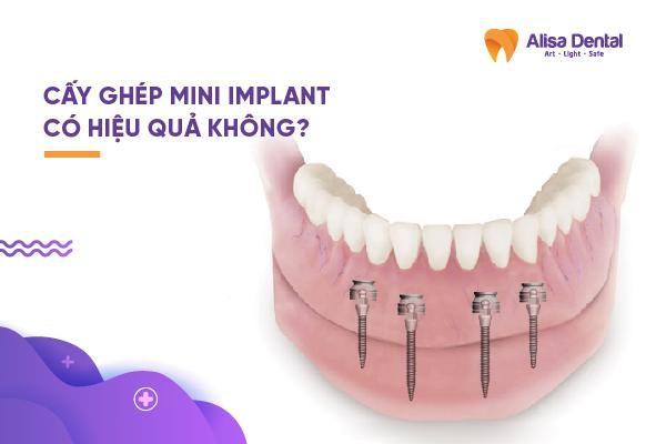 Cấy ghép mini Implant 5