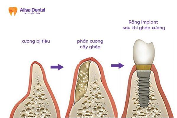 ghép xương trong cấy ghép Implant 2