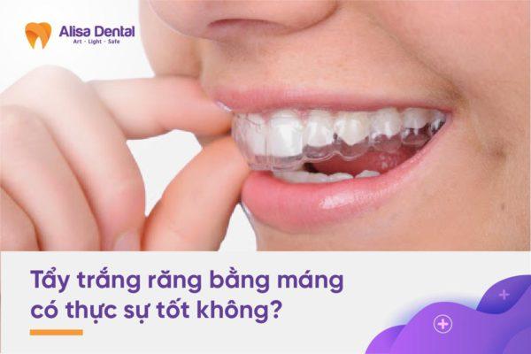 Tẩy trắng răng bằng máng 2