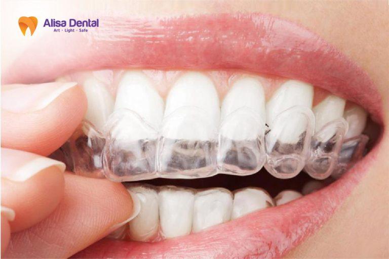 Tẩy trắng răng bằng máng có thực sự tốt không?