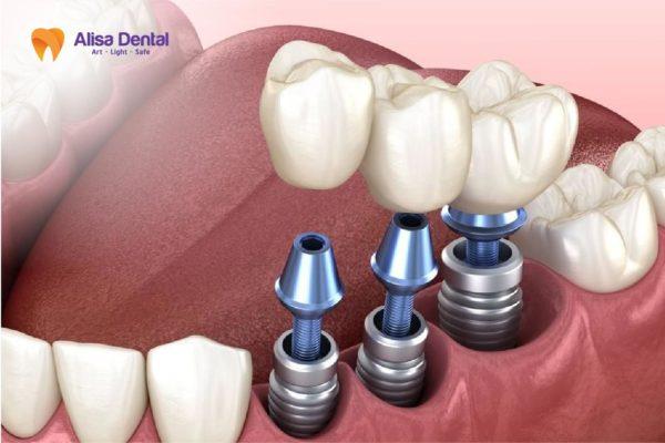 trồng 3 răng liên tiếp 5