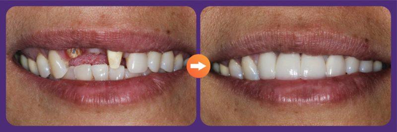 trồng 3 răng liên tiếp 3