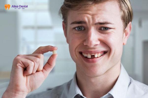 Trồng lại răng 1