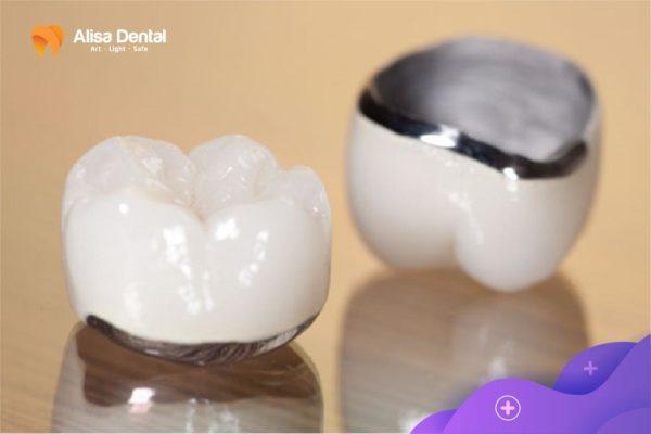 Trồng răng sứ kim loại 1