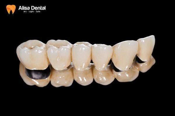 Trồng răng sứ kim loại 4