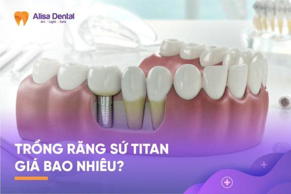 Trồng răng sứ titan 33