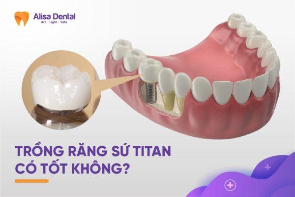 Trồng răng sứ titan 2