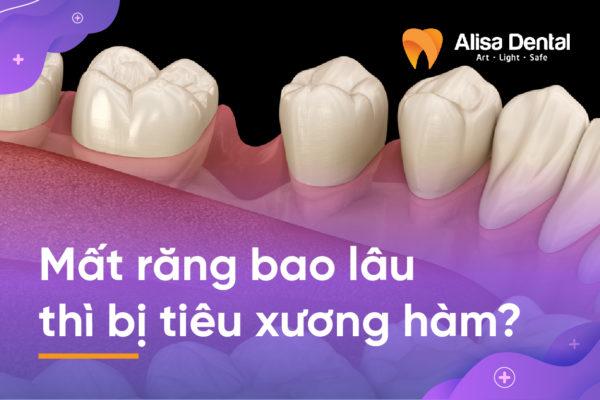Mất răng bao lâu thì bị tiêu xương hàm 2