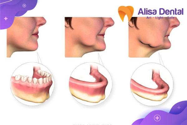 Trồng răng khi bị tiêu xương hàm 1