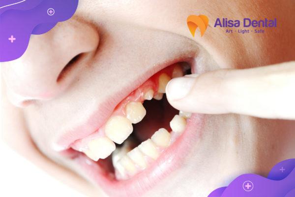 Gãy răng hàm 2