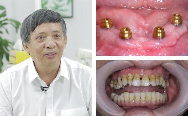 Mất răng có ảnh hưởng gì không 7